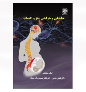 حاملگی و جراحی مغز و اعصاب